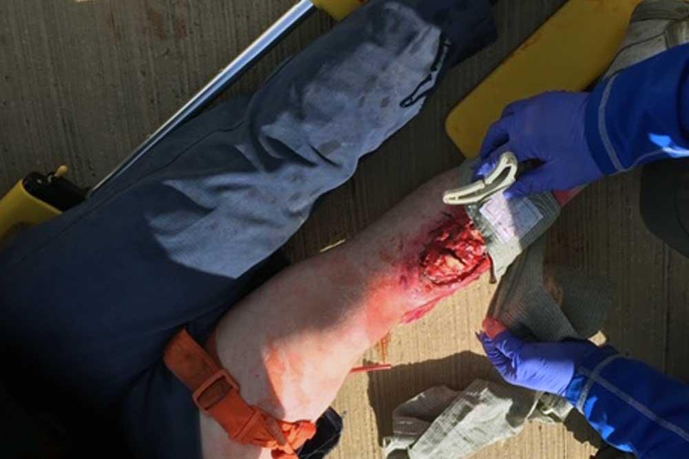 IRRTC - RTACC leg trauma