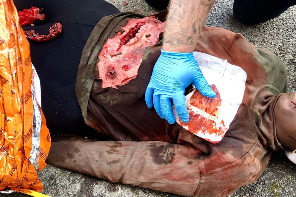 IRRTC RTACC Course realistic trauma care